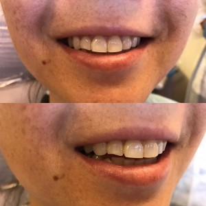 Composite Bonding: A patient did not like her chipped tooth, and we were able to repair it quickly and without discomfort or even a shot. See the next picture for her results!