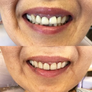 All-ceramic (E-max) Bridge: We were able to replace an older porcelain-metal type of bridge to a more natural looking restoration for a seamless smile!