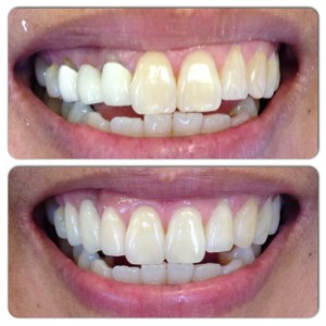 Composite Bonding: An example of our ability to repair a large cavity with a simple composite filling, done well. Composite fillings are an affordable, esthetic, and conservative treatment option for many patients.