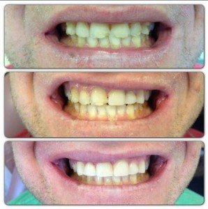 Composite Bonding: Our patient wanted an affordable option to repair some fractured teeth. We were able to achieve beautiful and realistic results with skillful composite bonding at a fraction of the cost of porcelain veneers.