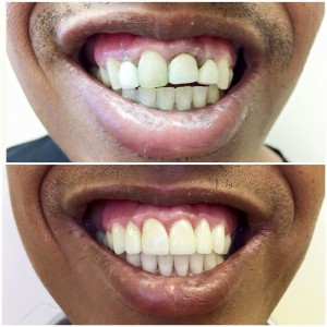 Invisalign, Crown lengthening, Ceramic crowns: This patient was not satisfied with the esthetics of her teeth. We were able to straighten her teeth with Invisalign, re-contour the gum line with the help of a periodontist, and then finalize this smile makeover with beautiful, all-ceramic crowns.