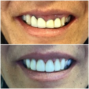 Ceramic Crown and Bridge: This patient disliked the way her front tooth was positioned (cross-bite). With orthodontics not being an option for her, we were able to change her smile by placing an esthetic all-ceramic bridge that also fixed her mal-positioned tooth.