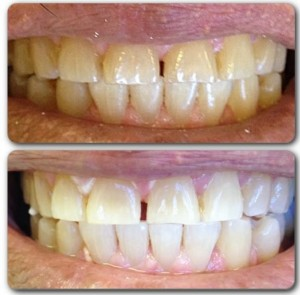 Zoom! Bleaching: Our patient was able to lighten his teeth 12 shades in 45 minutes! No sensitivity, no pain, and a brighter, whiter smile.